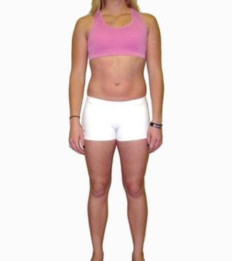 posture-correction